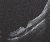 Figure 2 Handheld Optical Coherence Tomography Imaging Of The Macula Right Eye Shown Here Demonstrated Foveal Contour Preservation With Alteration
