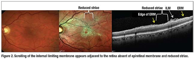 Wrinkled Posterior Hyaloid Membrane Has Been Found In 10 Percent Of Eyes Without A PVD This May Explain The Phenomenon Spontaneous ERM Separation